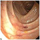 эндоскопическая картина дивертикулярной болезни