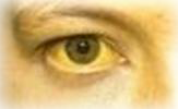 желтушность кожи и склер