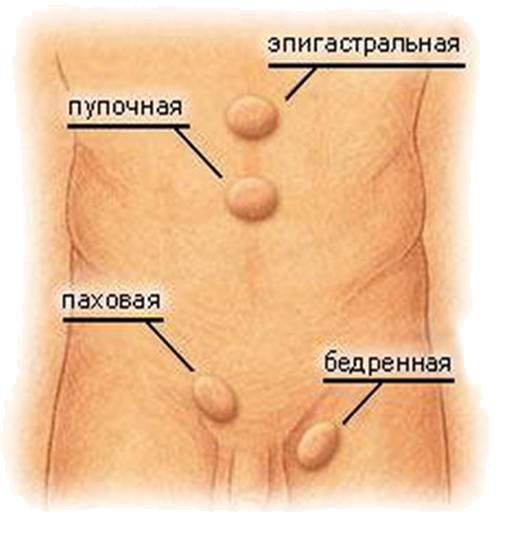 разновидности грыж передней брюшной стенки