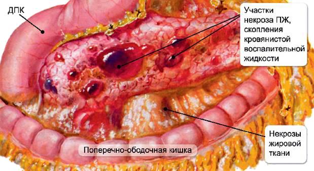 тотально-субтотальный панкреонекроз
