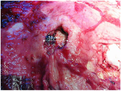 Язва желудка с пенетрацией в поджелудочную железу