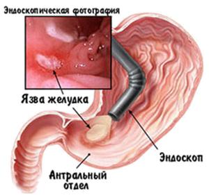 Язва желудка - эндоскопическая картина